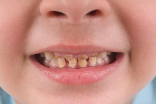 Thiếu kẽm khiến răng kém sáng bóng và dễ xỉn màu