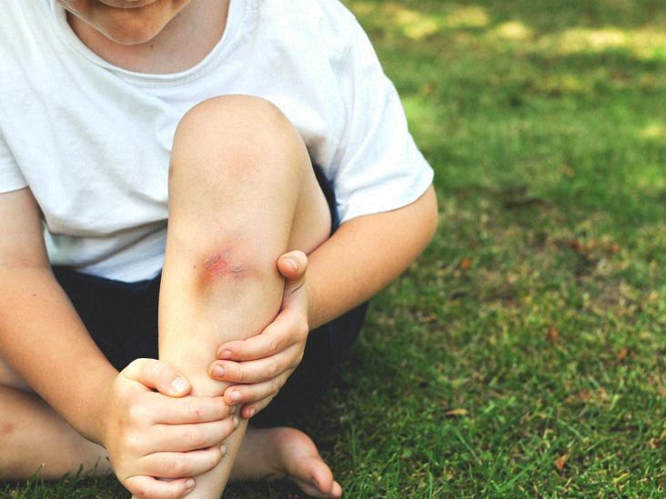 Trẻ thiếu vitamin C thường bị bầm tím trên da và chậm liền vết thương