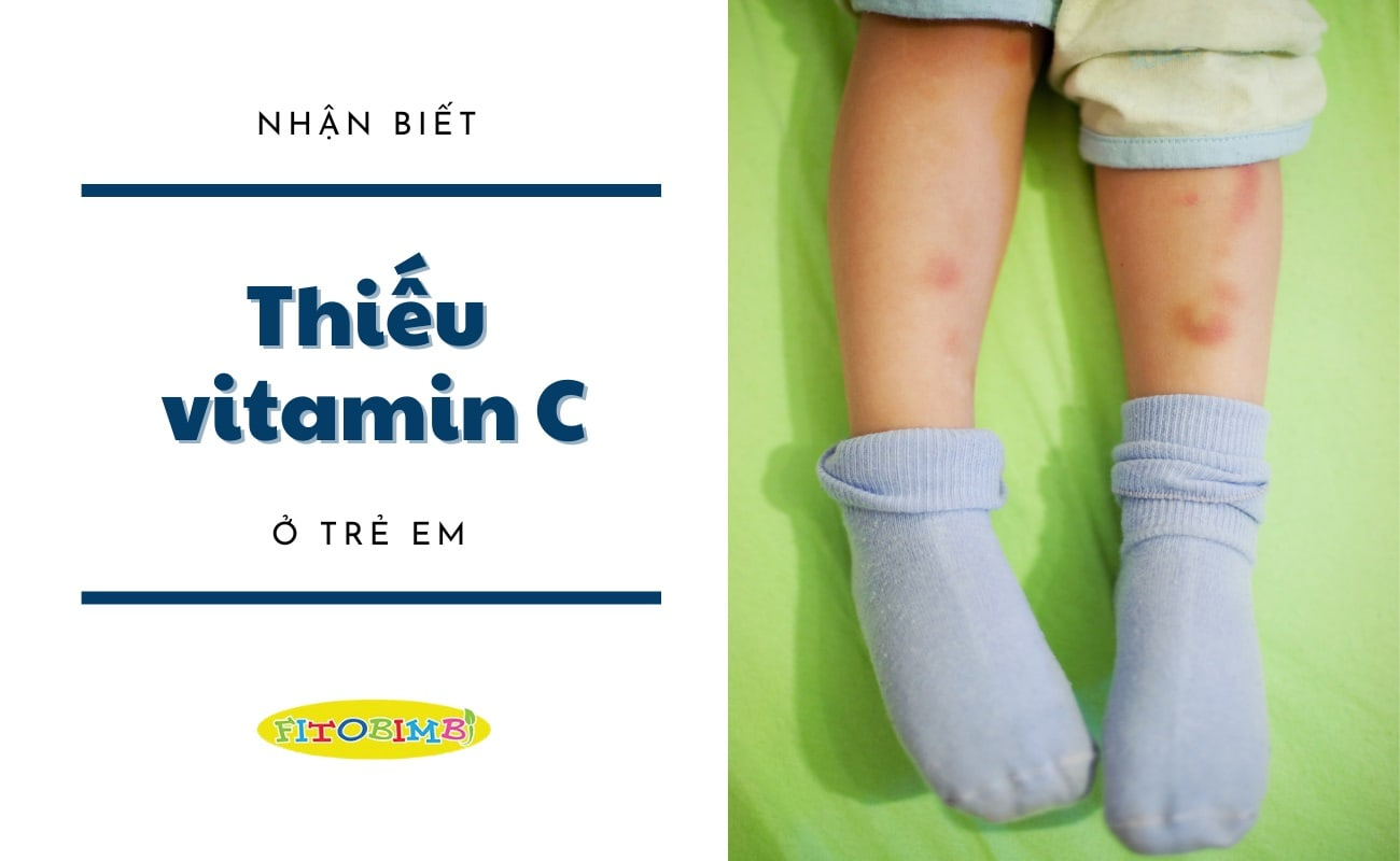 thiếu vitamin c ở trẻ em