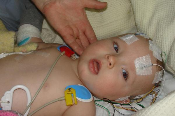 Xuất huyết não là hậu quả nặng nề nhất ở trẻ sơ sinh thiếu vitamin K1