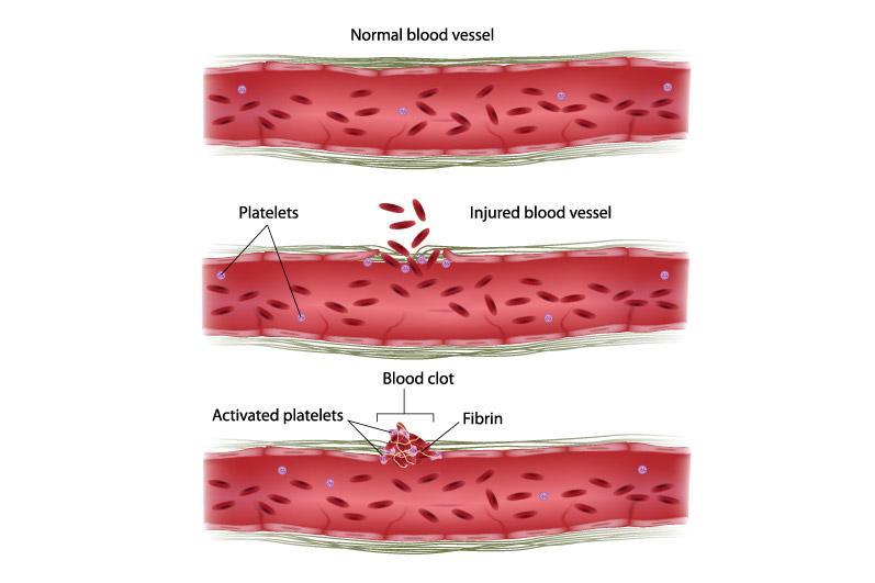 Vitamin K tham gia quá trình đông máu, ngăn ngừa xuất huyết não