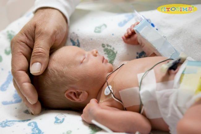 Trẻ sinh non chậm phát triển: Thử thách con phải đối mặt là gì