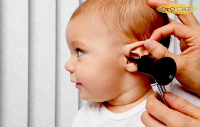 7 biểu hiện viêm tai giữa ở trẻ: có 3 dấu hiệu có thể bạn chưa biết