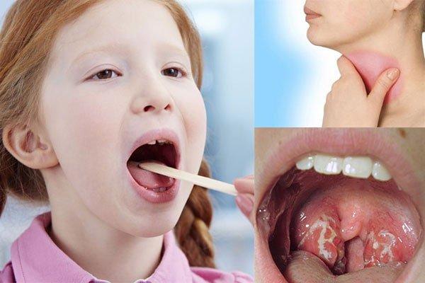 Trẻ dễ bị viêm họng khi thiếu kẽm