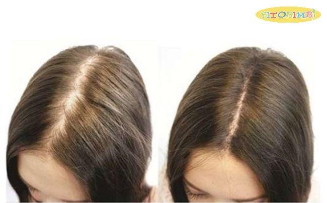 Dầu đậu nành hỗ trợ mọc tóc