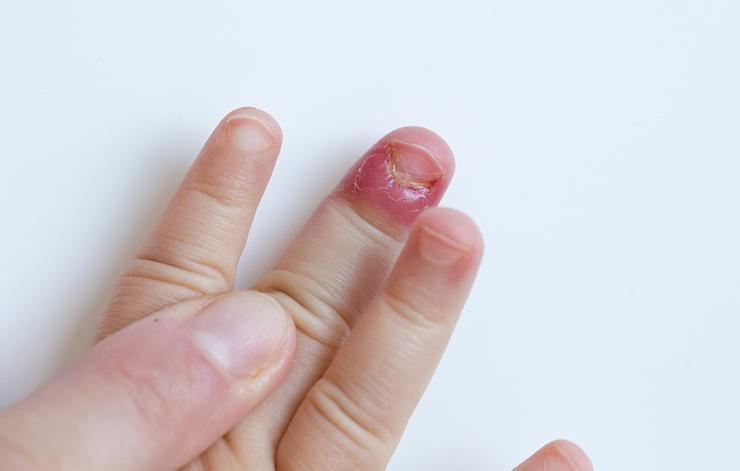 Thiếu kẽm ở trẻ nhỏ thường gây gãy móng