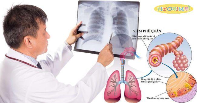 Sự khác biệt giữa viêm phế quản, viêm phổi và cảm lạnh là gì?