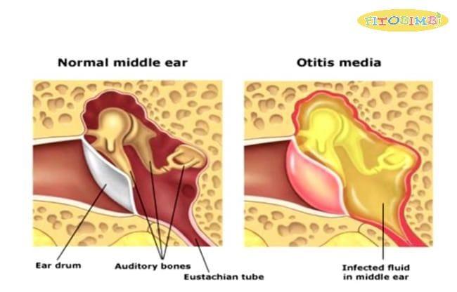Tìm hiểu về bệnh viêm tai giữa ở trẻ em