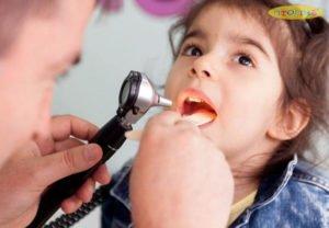 Trẻ bị viêm amidan cấp tính chỉ cần điều trị triệu chứng