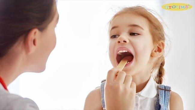 Triệu chứng viêm amidan cấp tính ở trẻ em thường xảy ra đột ngột