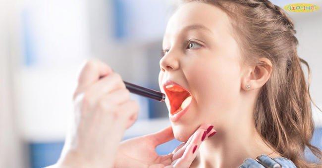triệu chứng viêm amidan ở trẻ em