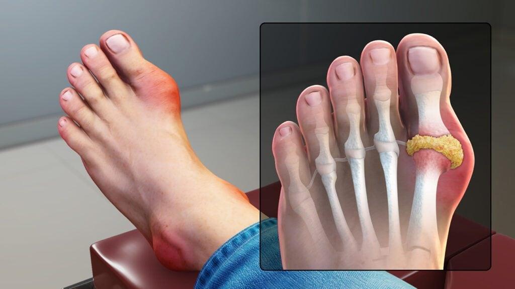 Gout có thể cải thiện nếu chế độ ăn chứa nhiều vitamin C