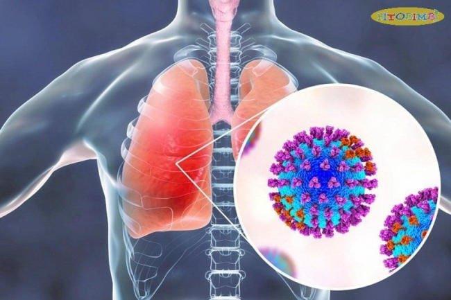 Nguyên nhân trẻ bị viêm phổi do vi khuẩn