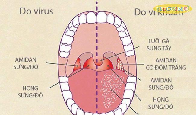Nguyên nhân trẻ sơ sinh bị viêm họng