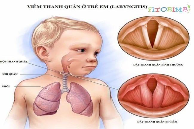 Trẻ bị viêm thanh quản ho sốt về đêm