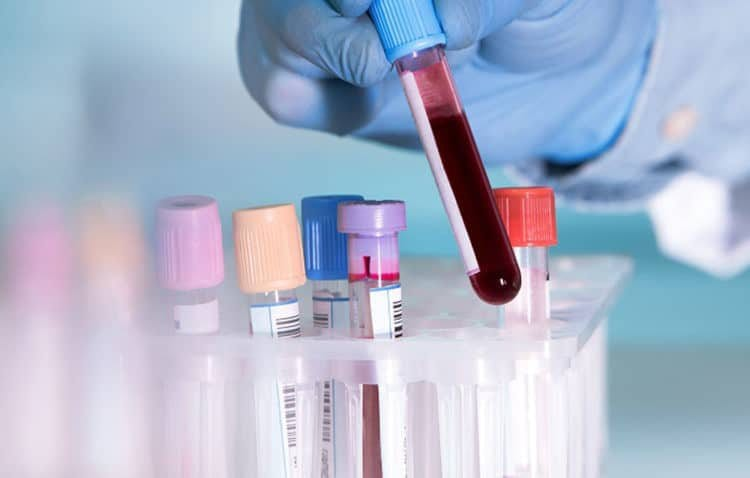 Xét nghiệm máu giúp biết tình trạng bệnh