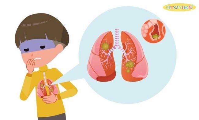 Viêm phổi ở trẻ em: Những thông tin mà CHA MẸ NÊN BIẾT
